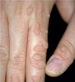 Папилломы - причины, симптомы, диагностика и лечение