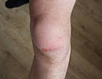 Ушиб коленного сустава и лечение хламидиоз и боль в суставах мышцах