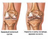 Лечение гонартроза артроз коленного сустава слабый голеностопный сустав у ребенка