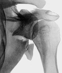 Перелом лопатки