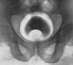 Ретроградная цистография при аденоме простаты