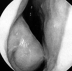 Отек и гипертрофия нижней носовой раковины при аллергическом рините. Эндоскопическое фото