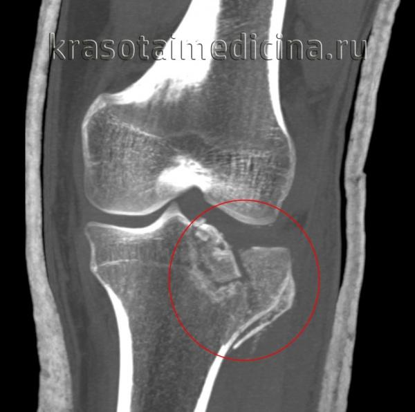 КТ коленного сустава. Оскольчатый перелом латерального мыщелка большеберцовой кости и межмыщелкового возвышения.
