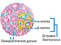Панкреатогенный сахарный диабет