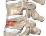 Перелом грудного отдела позвоночника