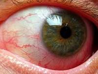 Туберкулез глаз и лечение thumbnail