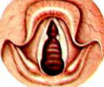 Хронический гиперпластический ларингит дифференциальная диагностика thumbnail