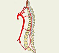 Спинальный инсульт симптомы лечение thumbnail