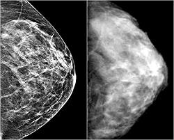 Мастопатия (маммограмма)