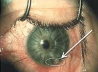 Инородные тела глаза