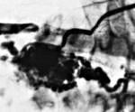 Артериовенозные мальформации спинного мозга
