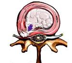 Межпозвоночная грыжа это хроническое заболевание thumbnail