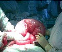 Острая кишечная непроходимость особенности клинического течения thumbnail