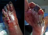 Диабет 2 типа гангрена ног thumbnail