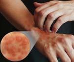 Признаки и причины атопического дерматита thumbnail