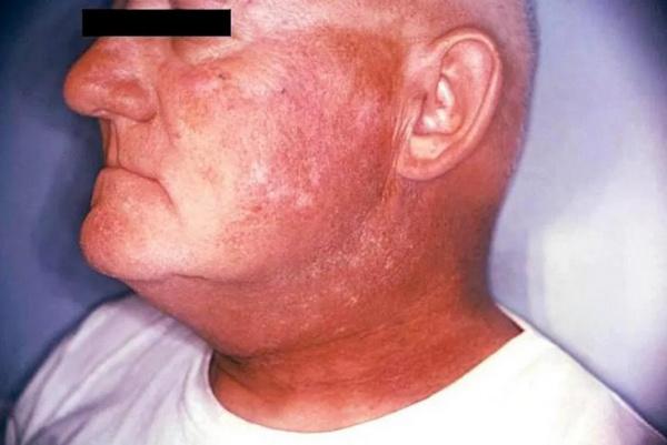 Синдромы при хронической лучевой болезни thumbnail