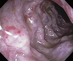 Ишемический колит колоноскопия
