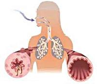 Поражение бронхов при бронхиальной астме thumbnail