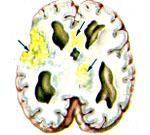 Как можно вылечить менингоэнцефалит thumbnail
