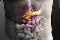 Клинический диагноз хронического панкреатита thumbnail