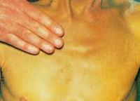 Холестатический гепатит