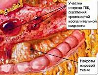 Некроз поджелудочной железы клиника thumbnail