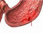 Признаки при язве желудка с кровотечением thumbnail