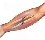 Переломы костей предплечья
