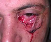 Рваные раны и ушибов thumbnail