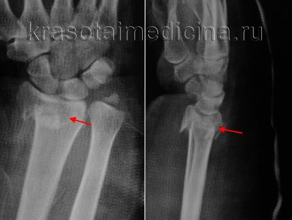 Рентгенография лучезапястного сустава. Перелом дистального метаэпифиза лучевой кости со смещением отломков.