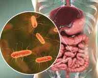 Дисбактериоз или синдром избыточного бактериального роста thumbnail