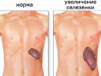 Причины спленомегалии при анемии thumbnail