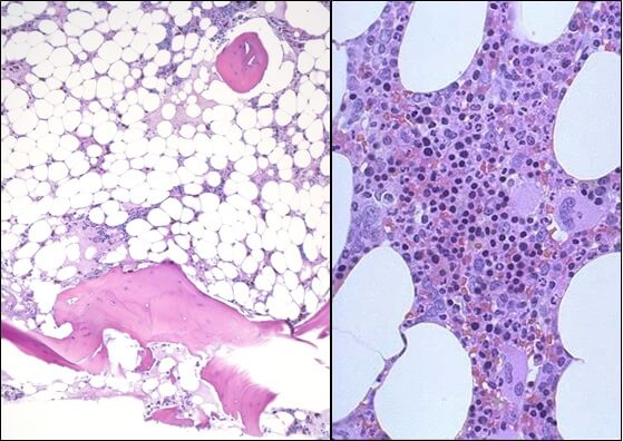 Миелограмма: слева - апластическая анемия, справа - нормальный костный мозг