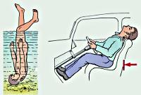 Перелом шейного отдела позвоночника