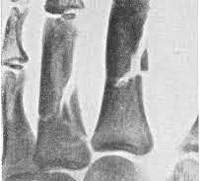 Открытый осколочный перелом руки thumbnail