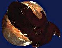 Эндометриоидная киста левого яичника все thumbnail
