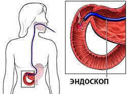 Взятие биоптата слизистой тонкого кишечника