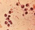 К группе кишечных инфекций относятся дизентерия thumbnail
