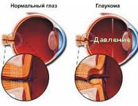 Вторичная глаукома что это такое thumbnail