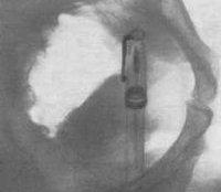 Инородное тело мочевого пузыря