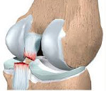 Повреждения связок коленного сустава
