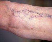 Диагностика и лечение при варикозная болезнь thumbnail