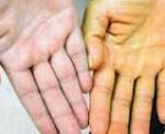 Приобретенная гемолитическая анемия показатели thumbnail