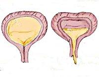 Вегетативная дисфункция мочевого пузыря thumbnail