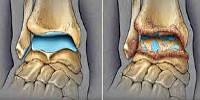 Причины возникновения артроза и его лечение thumbnail