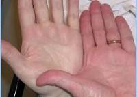 Острая постгеморрагическая анемия картина периферической крови thumbnail