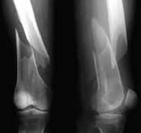 Переломы бедренной кости у детей