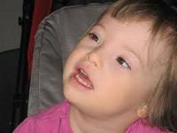 Синдром дауна симптомы и лечение thumbnail