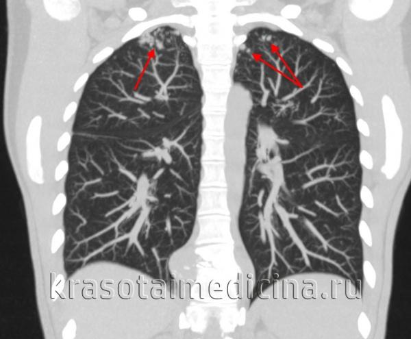 КТ ОГК. Очаговый туберкулез легких у этой же пациентки.