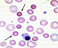 Наследственная микросфероцитарная анемия обусловлена thumbnail
